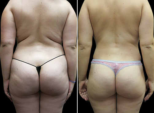 Before And After Lipo For Women