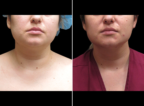Before And After Neck Liposuction Front View