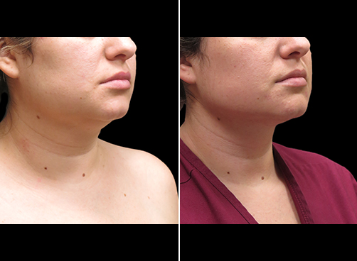 Before And After Neck Liposuction Right Quarter View