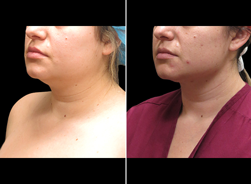Before And After Neck Liposuction Left Quarter View