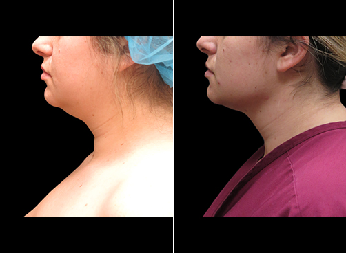 Before And After Neck Liposuction Left Side View