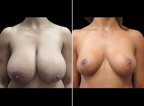 Lipo & Breast Reduction Before And After