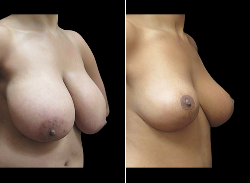 Lipo & Breast Reduction Before & After