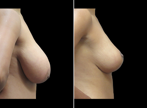 Lipo & Breast Reduction Results