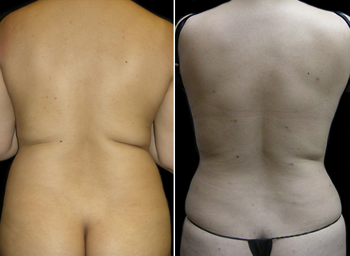 Female Liposuction Before And After Photo