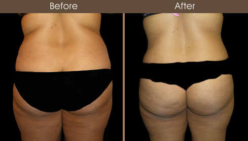 Female Liposuction Before & After Photo