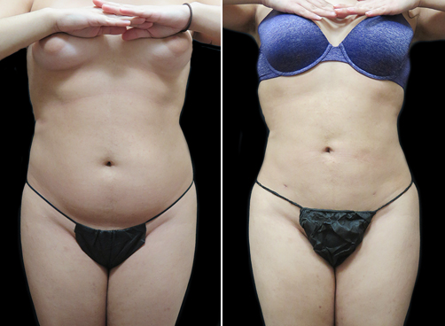 Female Lipo Before And After Photo