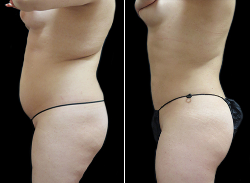 Female Lipo Before & After Photo