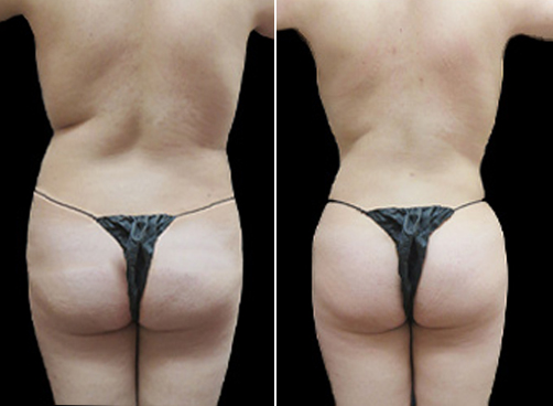 Female Liposuction Before & After Picture