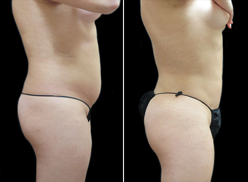 Female Liposuction Before And After Picture