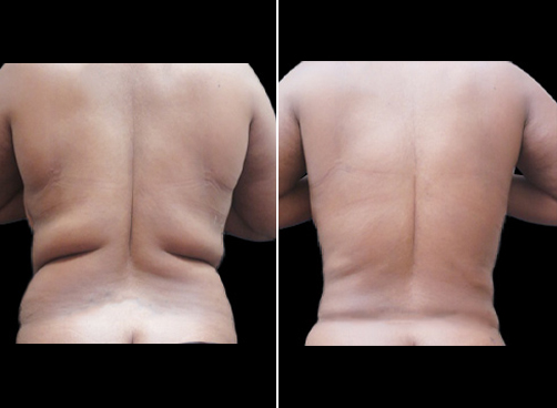 Liposuction Surgery For Women Before And After