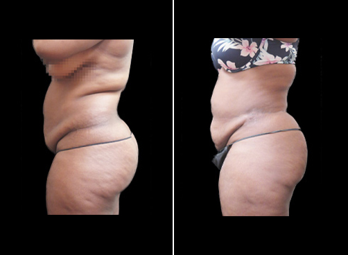 Liposuction Surgery For Women Before & After