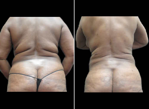 Before And After Liposuction Surgery For Women
