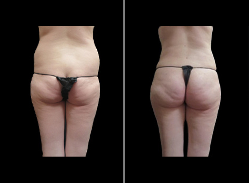 Before & After Liposuction Surgery For Women
