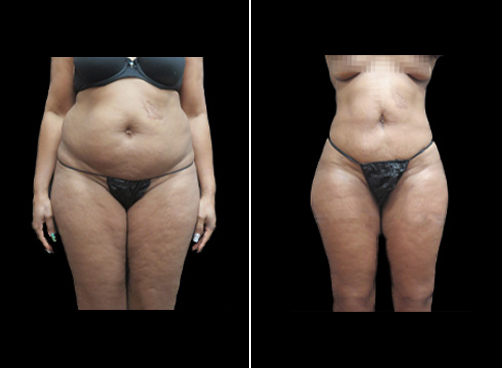 Lipo Surgery For Women Results
