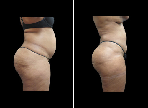Liposuction Treatment For Women Before And After
