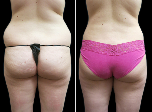 Before And After Lipo Treatment For Women