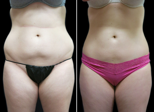 Liposuction Treatment For Women Results