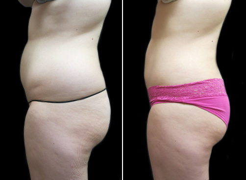 Lipo Treatment For Women Before And After