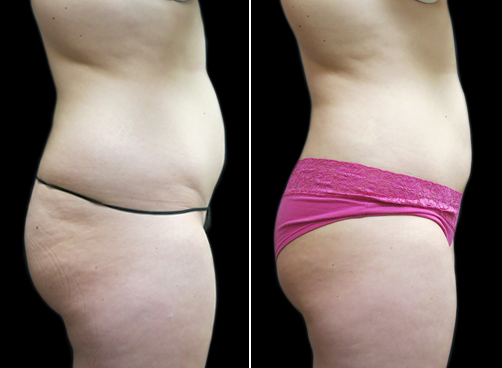Lipo Treatment For Women Before & After