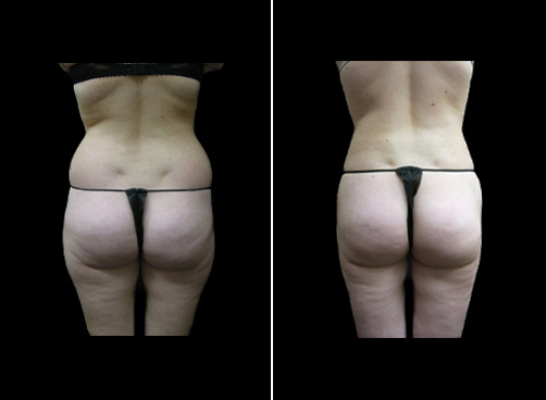 Liposuction Procedure For Women Before & After