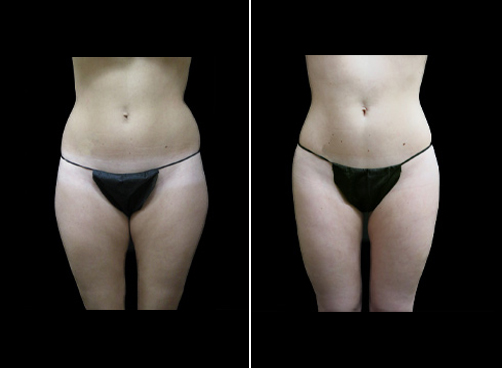 Before & After Lipo Treatment For Women