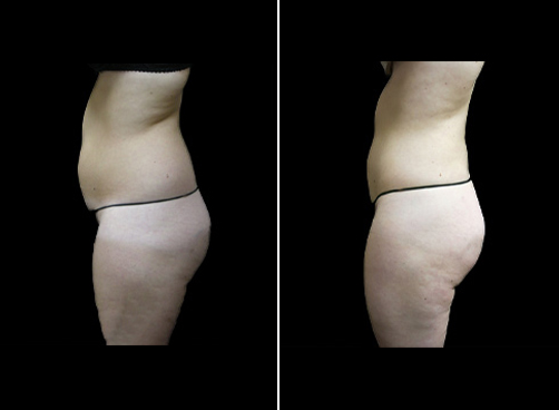 Liposuction Procedure For Women Before And After