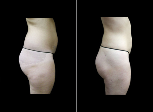 Lipo Treatment For Women Results