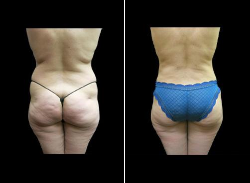 Liposuction Procedure For Women Results