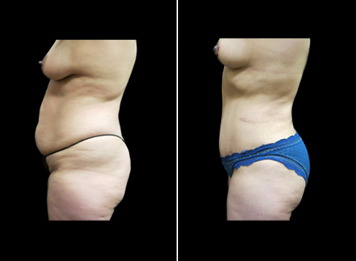 Before & After Liposuction Procedure For Women