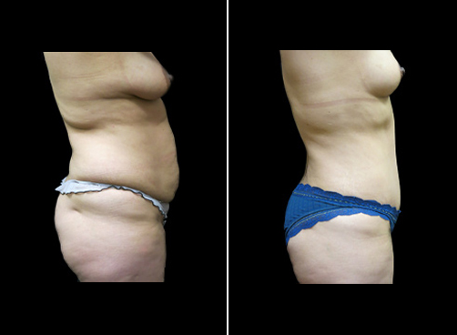 Before And After Liposuction Procedure For Women