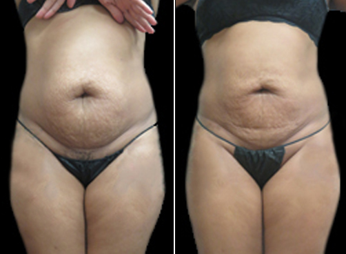 Lipo Procedure For Women Before And After