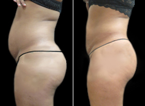 Lipo Procedure For Women Before & After