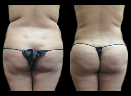 Before And After Lipo Procedure For Women