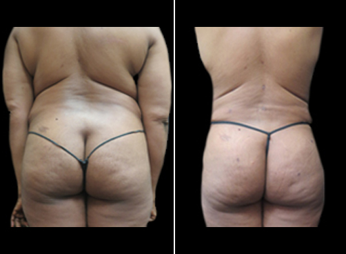 Before & After Lipo Procedure For Women