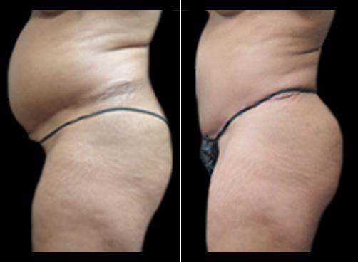 Lipo Procedure For Women Results