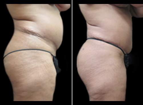 Female Liposuction Surgery Before And After