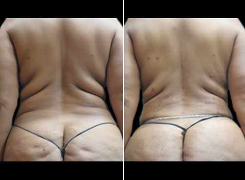 Female Liposuction Surgery Before & After