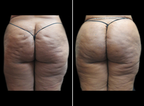 Female Liposuction Surgery Results