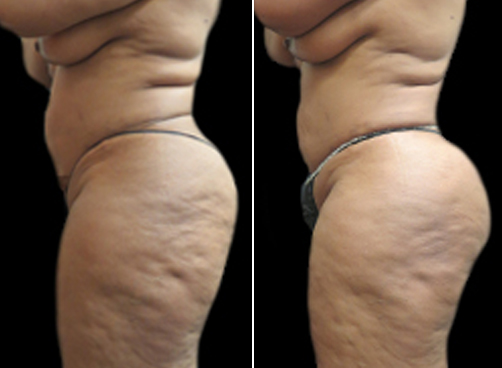 Before And After Female Liposuction Surgery