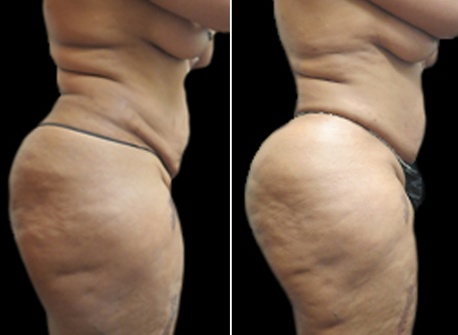 Before & After Female Liposuction Surgery