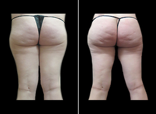 Female Lipo Surgery Before & After