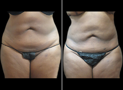 Before & After Female Lipo Surgery