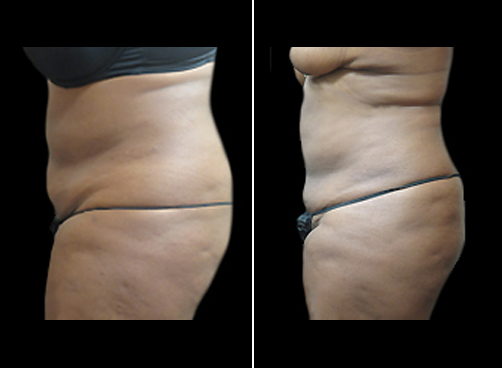 Female Lipo Surgery Results