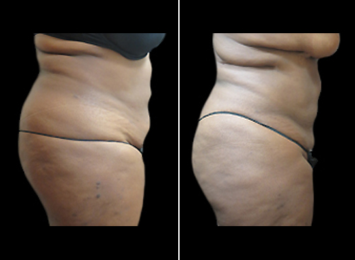 Female Liposuction Treatment Before And After