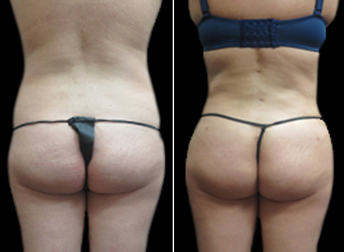 Female Liposuction Treatment Before & After