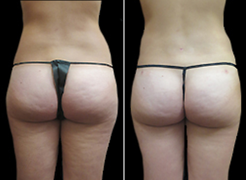 Before And After Female Liposuction Treatment