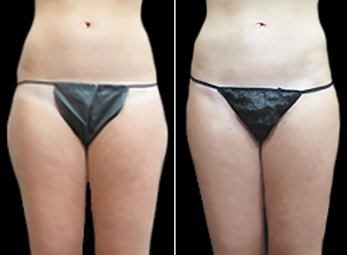 Before & After Female Liposuction Treatment