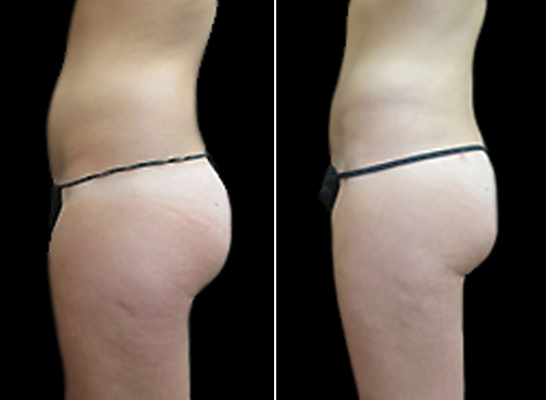 Female Liposuction Treatment Results