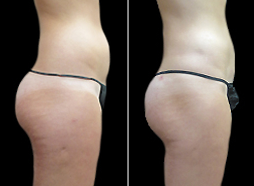 Female Lipo Treatment Before And After